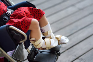 cerebral palsy lawyer in oregon Can Kernicterus Cause Cerebral Palsy