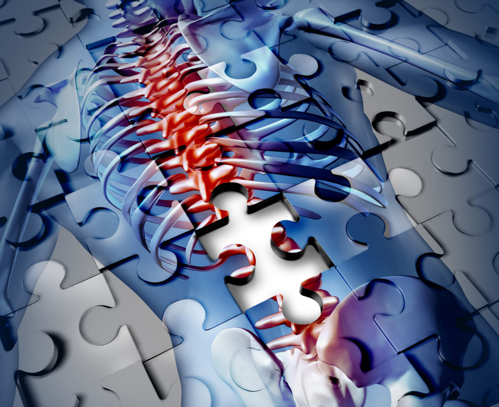 Spinal Cord Injuries from Oregon Medical Malpractice